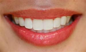 Bellevue Dentist Visits May Detect Early Tongue Disease