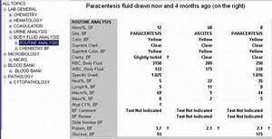 Clinical Notes  Paracentesis  A Step