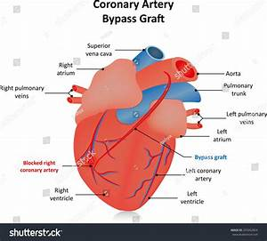 Coronary Artery Bypass Graft Stock Illustration 293262824
