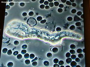Food Chart After C Section Morgellons Disease Awareness Live Blood Microscopy In A