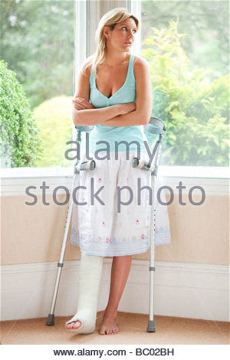am bein frau gipsverband stockfoto bild 67528177 alamy