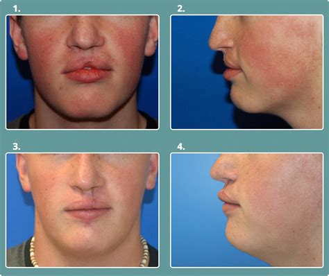 Before After Cleft Lip Palate Michael Bateman Md