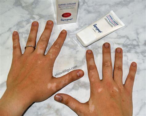 vitiligo hand treatment supergoop  young spf