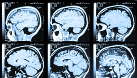 mri  detect early stages  alzheimers disease