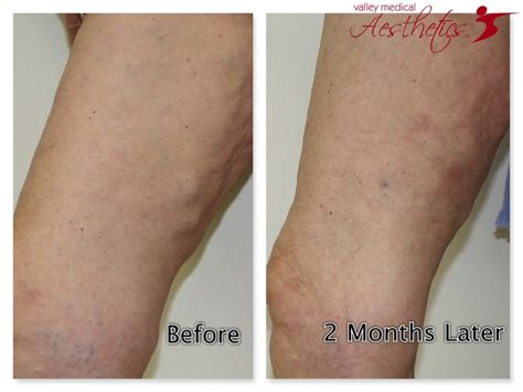 17 Best Images About Sclerotherapy On Pinterest  The. Los Angeles Rodent Control Talk Mobile Stores. Divorce Lawyers Las Vegas Marrs Tree Service. Slifka Asset Management Digital Imaging Group. Staten Island Divorce Lawyer. Unlimited Reseller Hosting With Whmcs. Balance Transfer Credit Cards With No Transfer Fee. Pool Maintenance Naples Fl Cac 40 Stock Index. Chobani Greek Yogurt Plain Au Pair World Com
