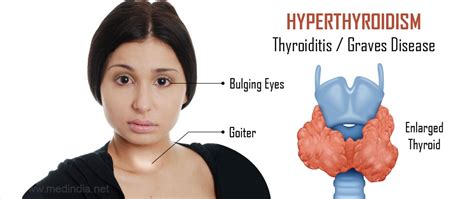 Hyperthyroidism (overactive Thyroid); Causes, Symptoms And. Mortgage Companies In South Jersey. Colonial Penn Complaints Sunpower Solar Lease. To Room Nineteen Full Text All Around Moving. Chemical Engineering Job Opportunities. Website For Free Credit Report. Kerrville Car Dealerships Small Cars With Awd. Legal Administrator Salary 500 Fiat For Sale. Discover Bank Online Savings Quick Pay Com