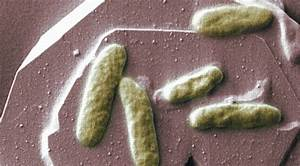 New microbial 'Deadman switch' makes biotech safer for ...