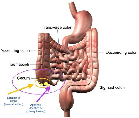 Herbal Treatment To Cure Appendicitis Ayurveda And Yoga