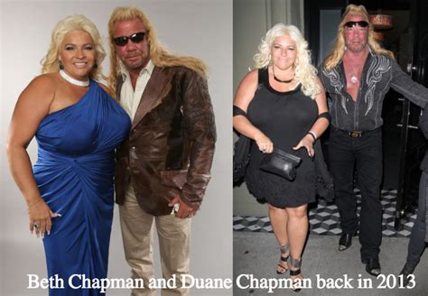 beth chapman boobs reduction plastic surgery rumors