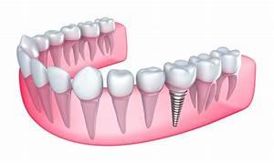 Parent U2019s Guide  U2013 Can Children Get Dental Implants