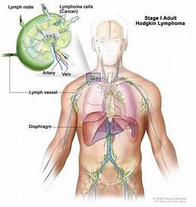 Adult Hodgkin Lymphoma Treatment  Pdq U00ae  U2014patient Version