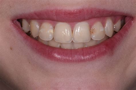 exposed cavities  front teeth aacd cosmetic