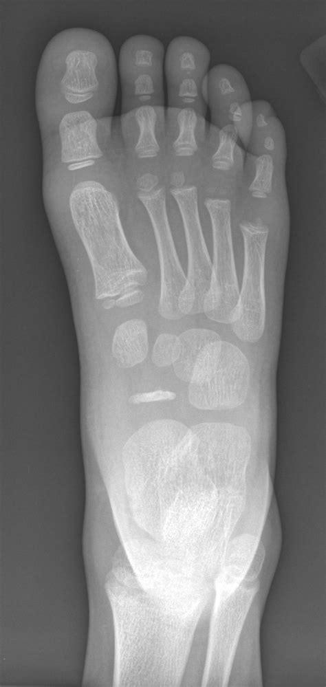kohler disease orthopaedicsone review orthopaedicsone