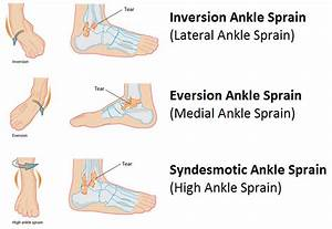 Ankle Sprain  U2022 Stephane Andre