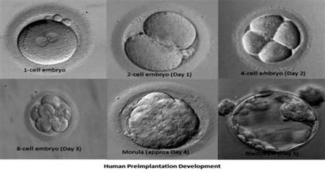 day   day  embryo transfers worlds largest