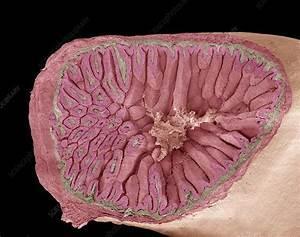Request Credit Line Increase Intestinal Villi Sem Stock Image C014 8930 Science