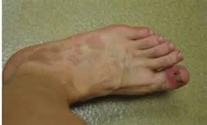 Lupus Skin Rash On Feet