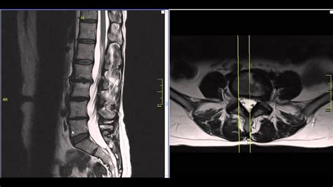 lateral lumbar disc herniation mri explained dr