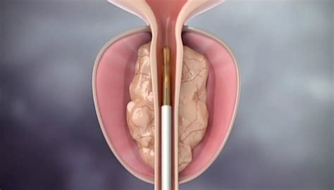 prostate treatment steaming offered being enlarged procedure newshub australian