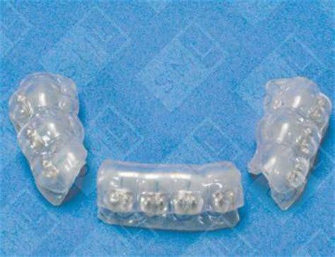 indirect bonding trays functional orthopedics dentist