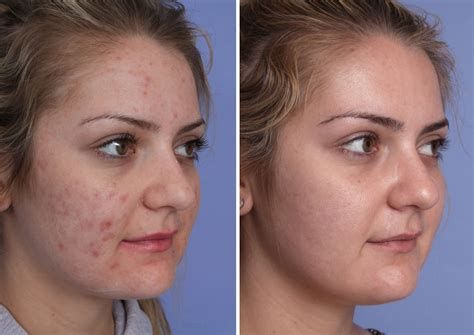 Orange County Vbeam Laser Before And After Photos