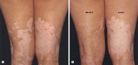 Tanning Ls For Psoriasis by 100 Narrow Band Uvb L 100 Images Waldmann Engineer