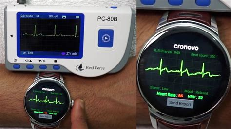 ECG EKG Cronovo Smart Watch compared with FDA Device - YouTube
