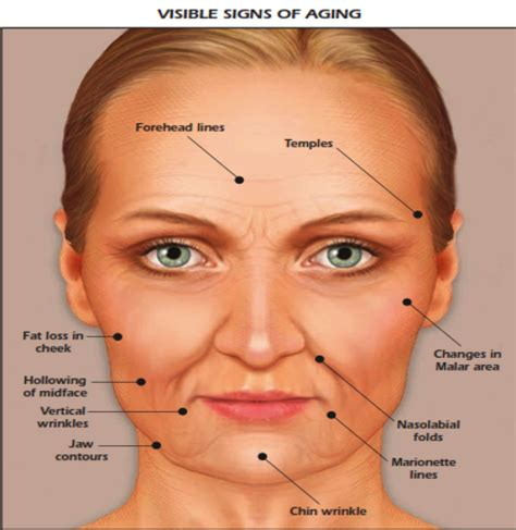 Physiology Of Aging  Hill Country Cosmetics. Shoe Signs. Inside Signs Of Stroke. Brainstem Stroke Signs. Rupee Signs. Second Signs Of Stroke. Strategies Signs. Family Member Signs. Symptom Clinical Signs Of Stroke