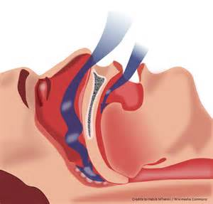 Sleep apnea, sleep disorder Sleep Apnea