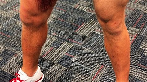 jj watt posted  grossest picture   leg bruise