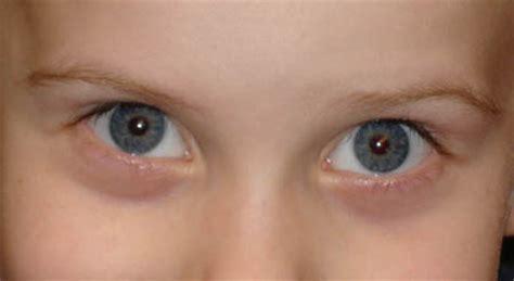 light spots in vision vision screening program corneal light