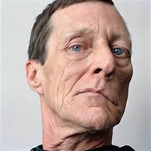 Poignant Portraits Of Facial Paralysis Patients