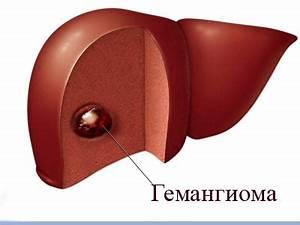 Народные средства для лечения гемангиомы печени