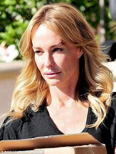 Taylor Armstrong 'had re-constructive surgery after ...