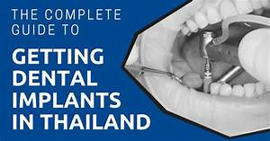 The Complete Guide To Getting Dental Implants In Thailand