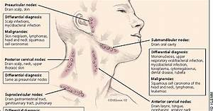 Trouble With Lymph Nodes: Specifically Subclavicular Lymph ...