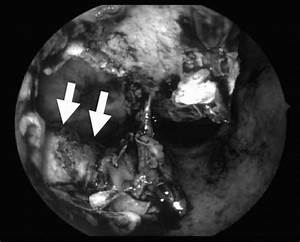 Endoscopic Photograph Showing The Radicular Cyst In The