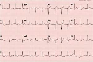 Chest Pain In A 44
