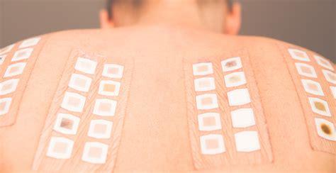 patch test sostanze patch test reggio emilia 3c salute