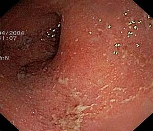 ulcerative colitis - Bing images