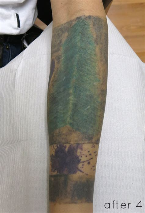 laser tattoo removal  solid black cover  tattoo