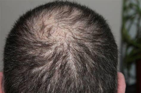 perdita capelli alimentazione rimedi naturali contro la perdita di capelli tnt post