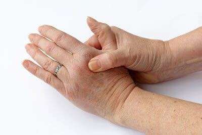 natural remedies  relieve  pain  arthritis