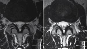 Mri In T1 And T2 Phases With Evidence Of Bilateral Facet