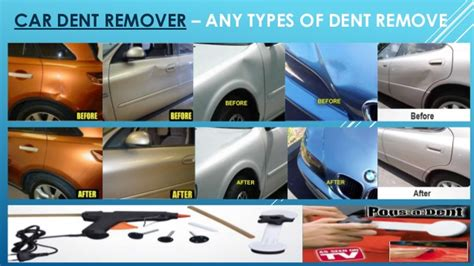 Any Types Of Dent