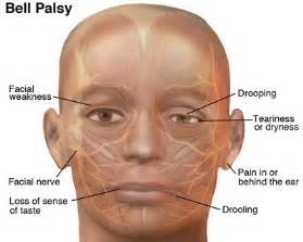 Bell's Palsy - NeuroEMS Bell's Palsy