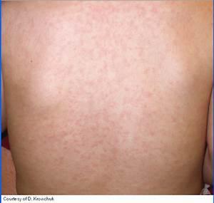 rubella rash pictures - pictures, photos