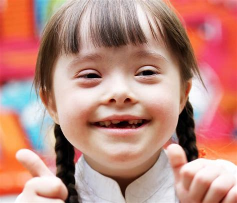 FACTS ABOUT DOWN'S SYNDROME