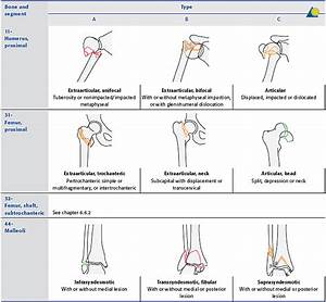 Distal femur - AO Surgery Reference
