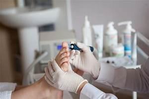Уринотерапия при грибке ногтей
